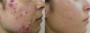 IPL Acne Clearance Before and After
