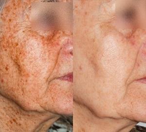 IPL Skin Rejuvenation on cheeks
