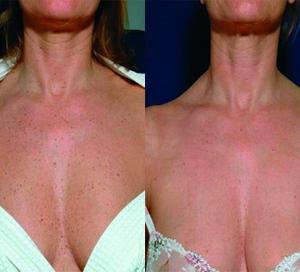 IPL Skin Rejuvenation on chest