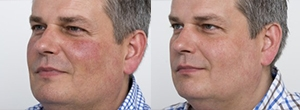 IPL Facial Thread Vein Removal - Before and After
