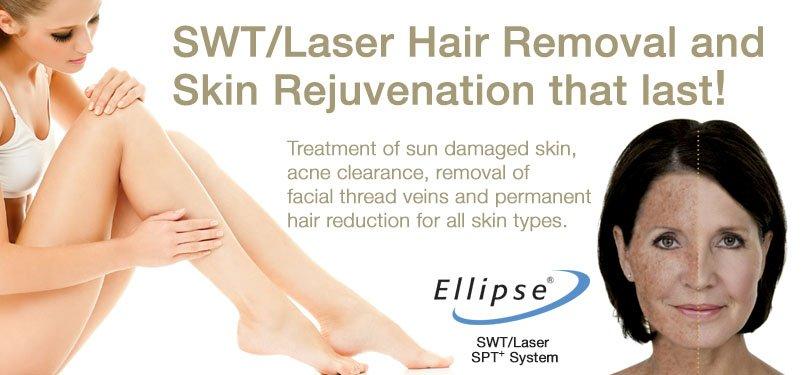 Ellipse laser hair removal and skin rejuvenation